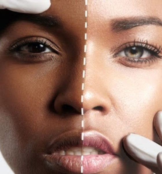 Skin Bleaching: How It Affects The Image of Beauty And Black Culture